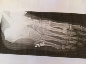 xray from the side which shows where the talus is located and how the docs tried to fix it.