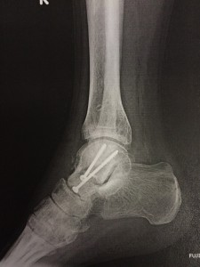 xray shows how my ankle looks finally after removel of screws and nails (2 will remain inside my Tallus)